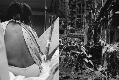 Landscape of the Body (epilepsy test) Series: The Notion of Family, 2011. LaToya Ruby Frazier, American, born 1982. Gelatin silver prints, 30 1/8 x 22 1/2 in and 29 7/8 x 22 5/8 in. Images courtesy of Seattle Art Museum.